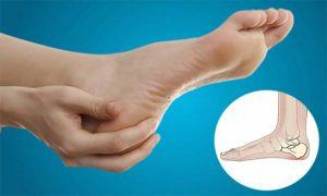 خار پاشنه پا و درمان آن - طب سنتی
